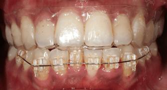 維持器的種類 - 蔡明晞 齒顎矯正專科醫師