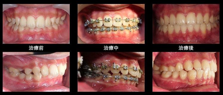 上顎暴牙(不拔牙) - 蔡明晞 齒顎矯正專科醫師