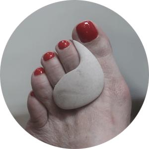 מיישר אצבעות לכף הרגל