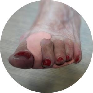 מיישרי אצבעות לכף הרגל