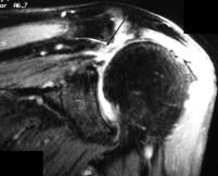 Supraspinatus Tear for OBuzz
