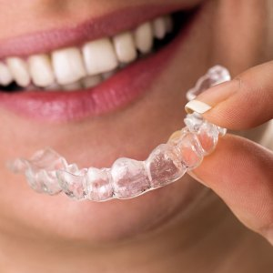 7 Tips to get relief from aligners pain