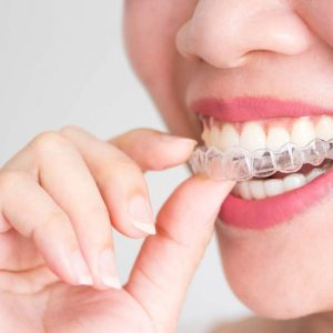 How do ODS Aligners move Teeth