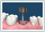 d-implant04