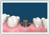 d-implant06