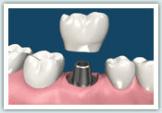 d-implant07