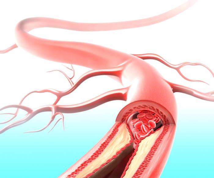 artherosclerosis-illustration