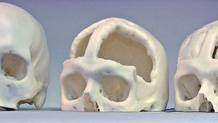 skulls_3d