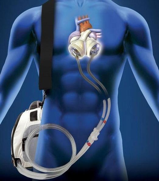 heart-transplant3