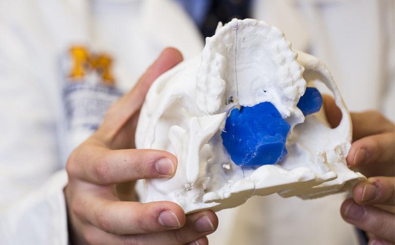 3d-printed-skull