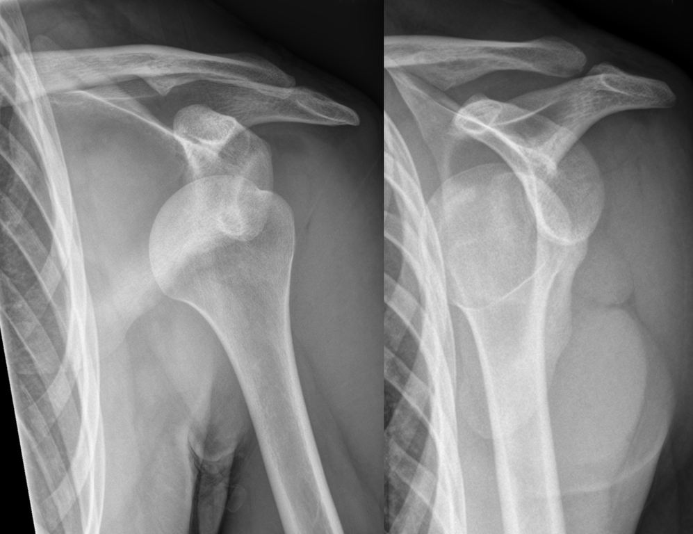 997px-dislocated_shoulder_x-ray_10_0