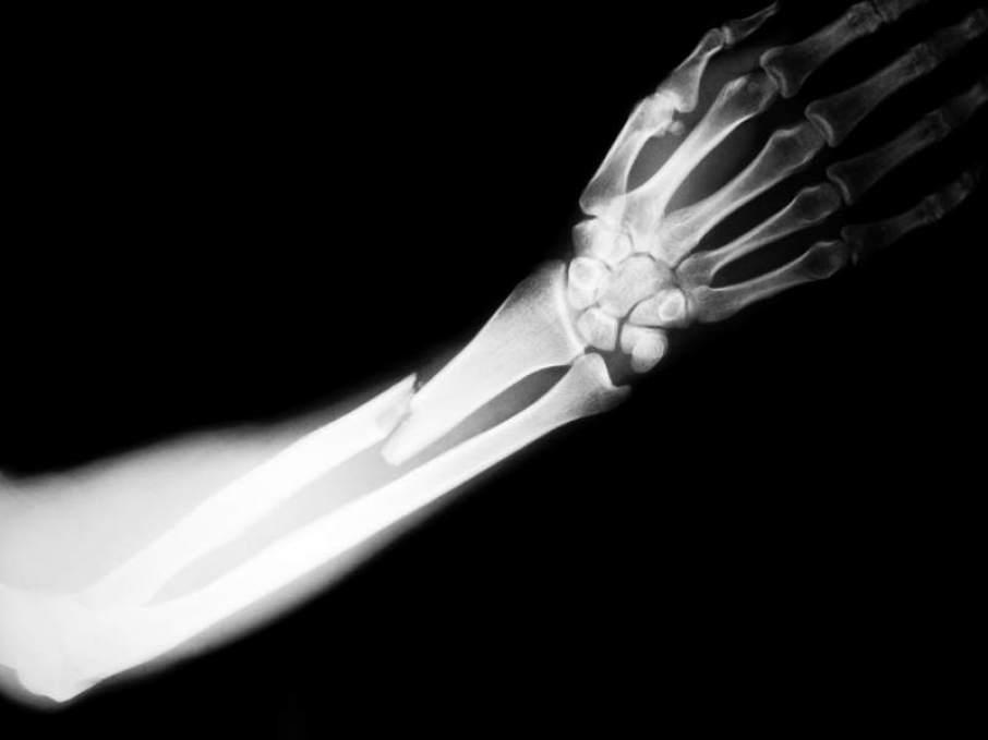 arm-fracture-orthosports-e1478175222885-906×679