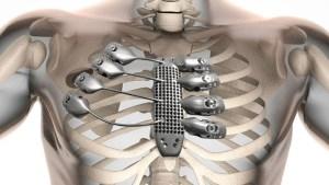 3d-printing-medical-titanium