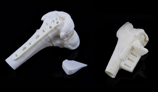 patient-specific-osteotomy-guides-6