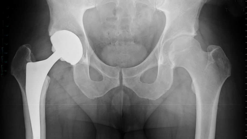 Radiographie Prothse totale de hanche