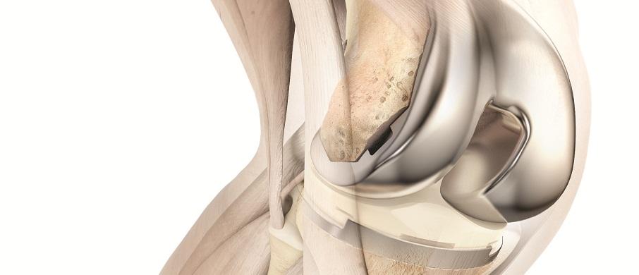 ATTUNE Knee on Bone Option 2 REV