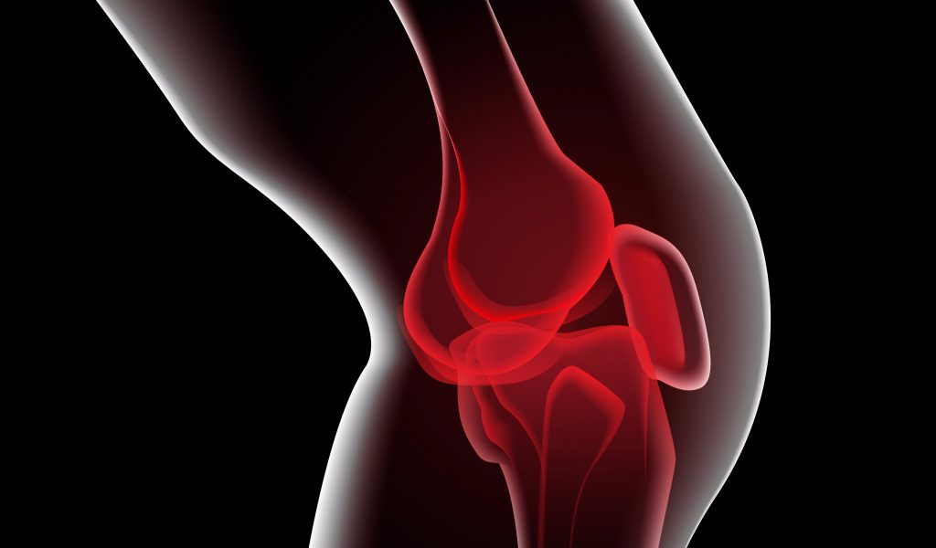 Knee-Pain-1024×600-c-default