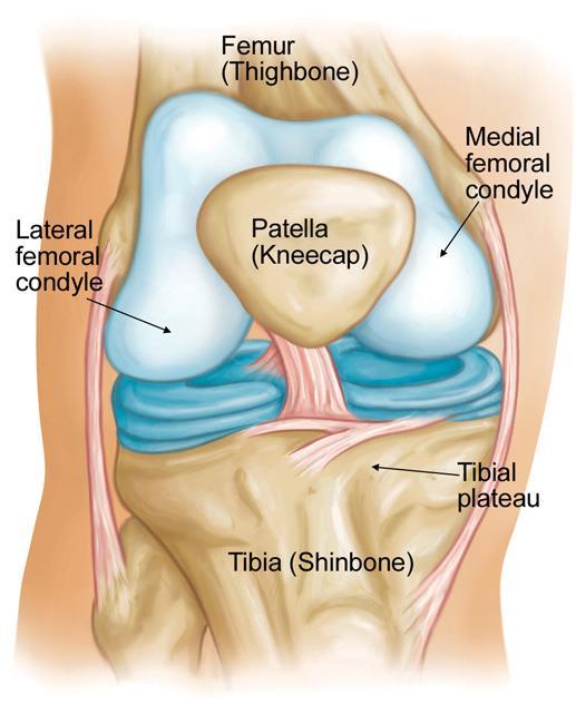 Knee Arthroscopy Icd 10 : arthroscopy, Osteonecrosis, OrthoInfo