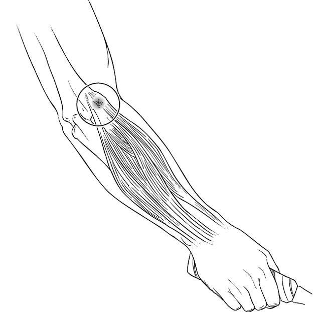 Codo de tenista (epicondilitis lateral) (Tennis Elbow