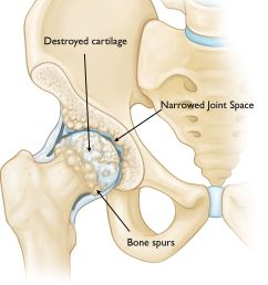 an osteoarthritic hip [ 1276 x 1653 Pixel ]