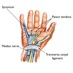 Hand Nerves Diagram True T 23f Wiring Carpal Tunnel Syndrome Symptoms And Treatment Orthoinfo Aaos Is Caused By Pressure On The Median Nerve As It Travels Through