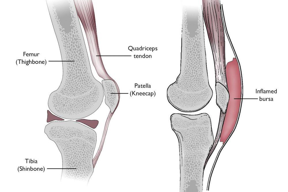 medium resolution of normal knee anatomy including the bursa involved in prepatellar bursitis