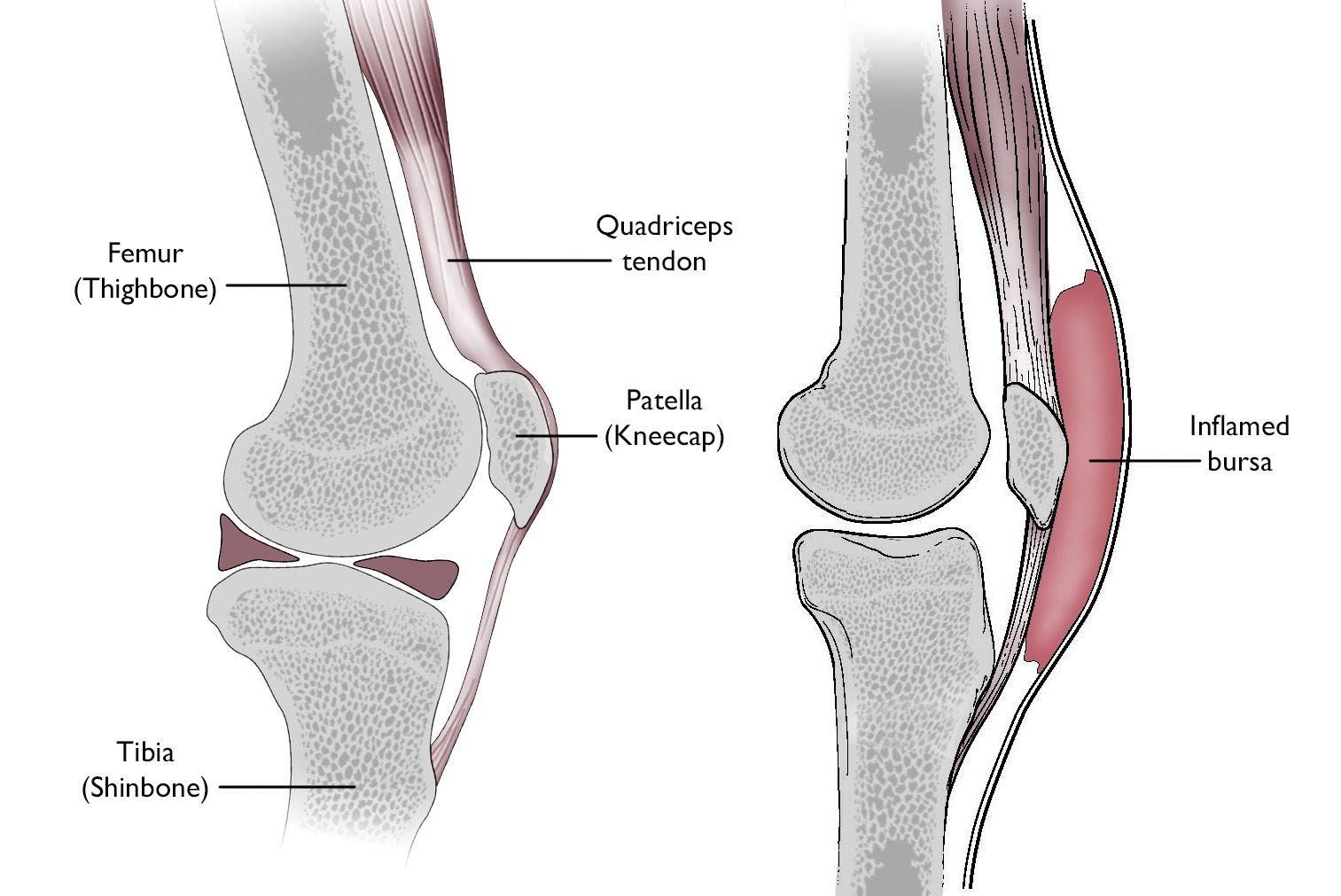 hight resolution of normal knee anatomy including the bursa involved in prepatellar bursitis