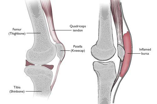 small resolution of normal knee anatomy including the bursa involved in prepatellar bursitis