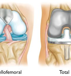 patellofemoral replacement and total knee replacement [ 1191 x 750 Pixel ]