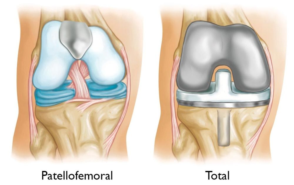 medium resolution of patellofemoral replacement and total knee replacement