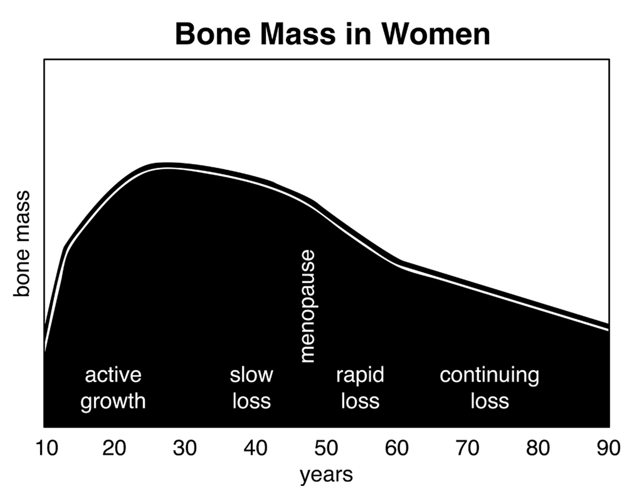 hight resolution of bone mass chart