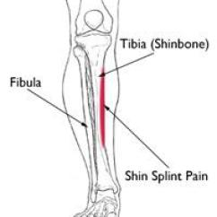 Diagram Of Tibia Stress Fracture 47re Wiring Shin Splints Orthoinfo Aaos Location Pain From