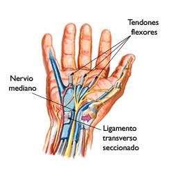 radial nerve diagram freezer defrost timer wiring síndrome del túnel carpiano (carpal tunnel syndrome) - orthoinfo aaos