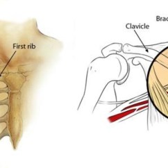 Nerves In Neck And Shoulder Diagram Pj Car Trailer Wiring Burners Stingers Orthoinfo Aaos Are Injuries To The Brachial Plexus A Network Of Intertwined That Control Movement Sensation Arm