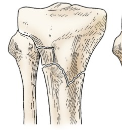 illustration of different proximal tibia fractures [ 2177 x 925 Pixel ]