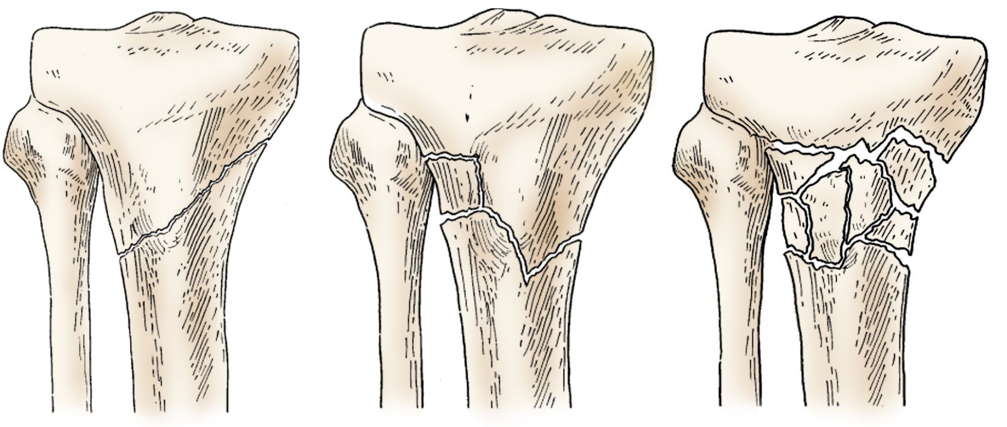 hight resolution of illustration of different proximal tibia fractures