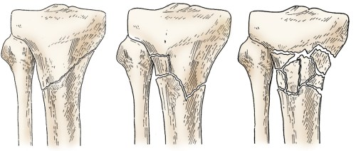 small resolution of illustration of different proximal tibia fractures
