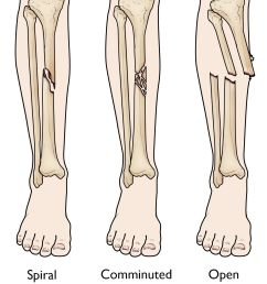 spiral comminuted and open tibial shaft fractures [ 1155 x 1327 Pixel ]