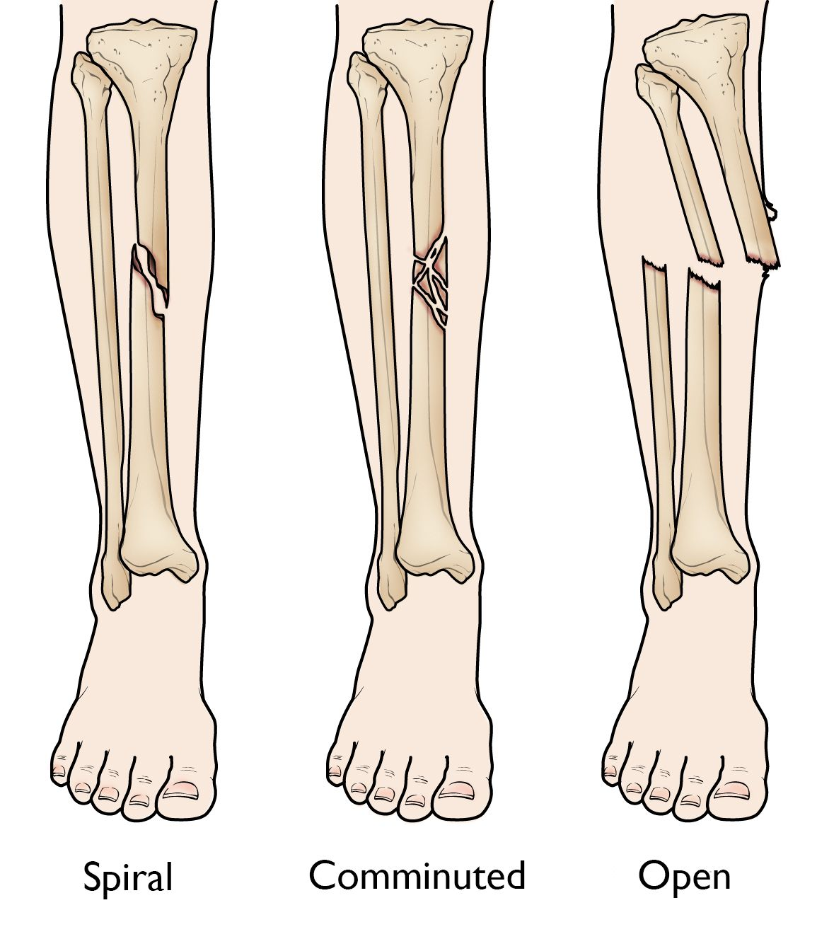 hight resolution of spiral comminuted and open tibial shaft fractures