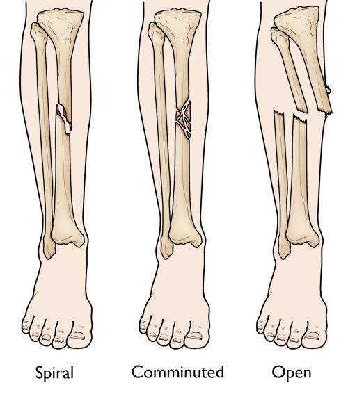 small resolution of spiral comminuted and open tibial shaft fractures