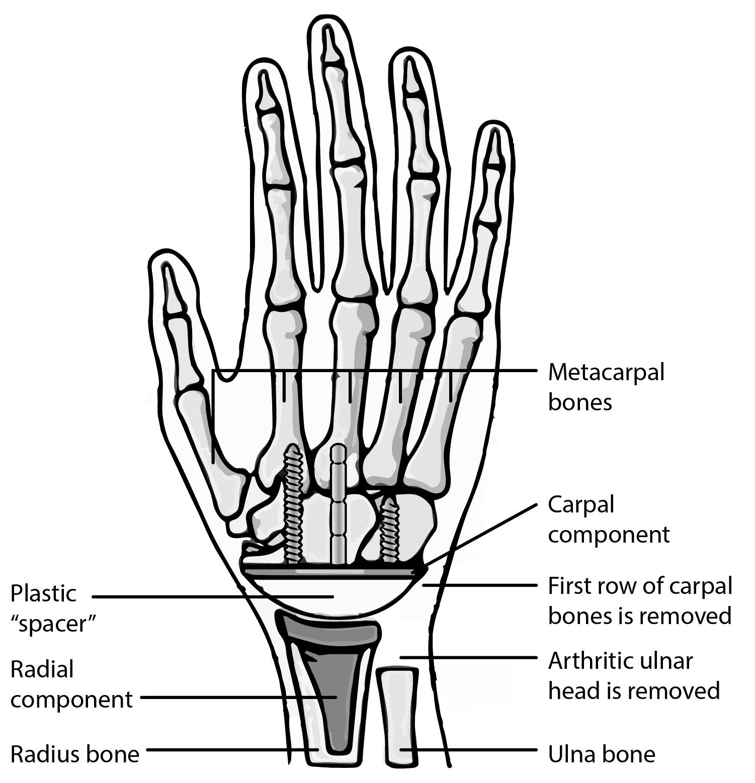 Carpals Definition Anatomy