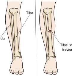 lower leg anatomy and tibial shaft fracture [ 1108 x 1019 Pixel ]