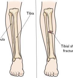 broken leg diagram wiring diagram detailed feet bones broken knee bones diagram [ 1108 x 1019 Pixel ]