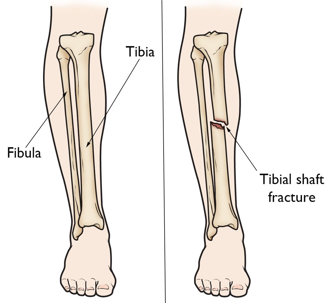 hight resolution of lower leg anatomy and tibial shaft fracture
