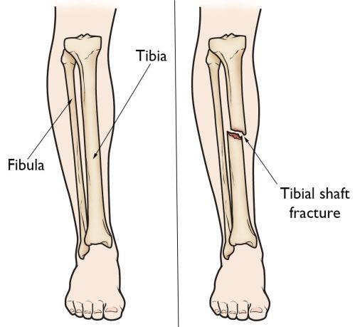 small resolution of broken leg diagram wiring diagram detailed feet bones broken knee bones diagram