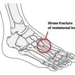 Diagram Of Tibia Stress Fracture How To Hook Up 24 Volt Battery Fractures Orthoinfo Aaos Metatarsal Bone In Foot