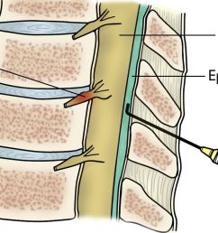 epidural injection in the spine [ 1392 x 744 Pixel ]