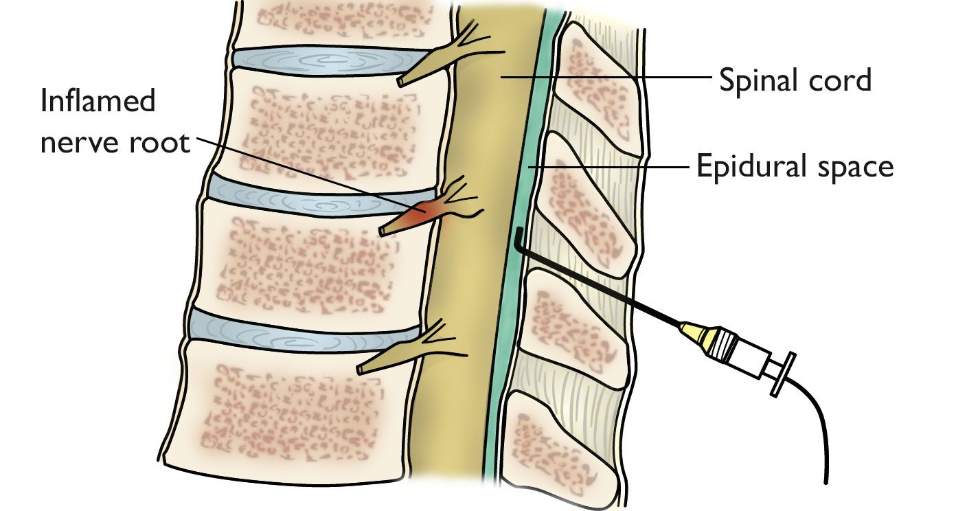 hight resolution of epidural injection in the spine