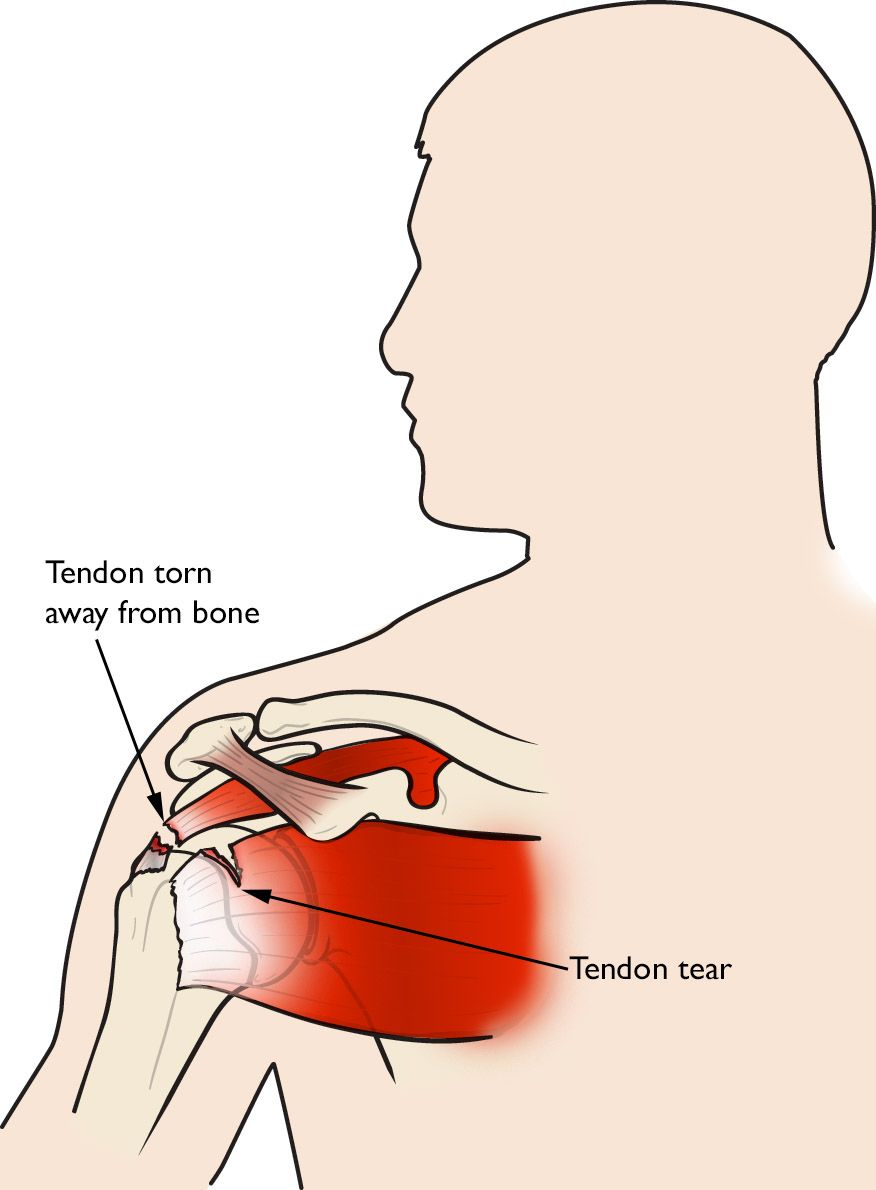 medium resolution of illustration of a rotator cuff tendon torn away from bone