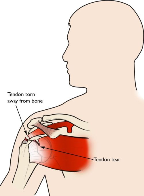 small resolution of illustration of a rotator cuff tendon torn away from bone